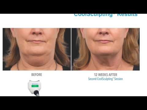 World's #1 Non Invasive Fat Freezing Technology Is Now at Silkor! Before and After Pictures