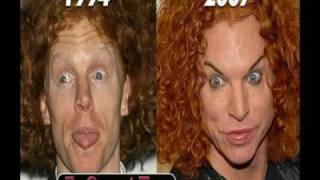 Top 10 Celebrity Plastic Surgery Operations Gone Wrong