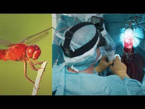 Co wspólnego mają owady i nowoczesne operacje neurochirurgiczne? [36,6]