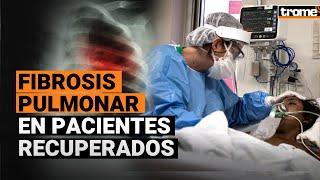 Coronavirus Perú: Pacientes COVID-19 que salieron de UCI podrían presentar fibrosis pulmonar