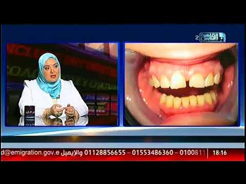 الناس الحلوة | مشاكل الأسنان وفنيات علاجها وتجميلها مع د/ إسراء أحمد السعيد