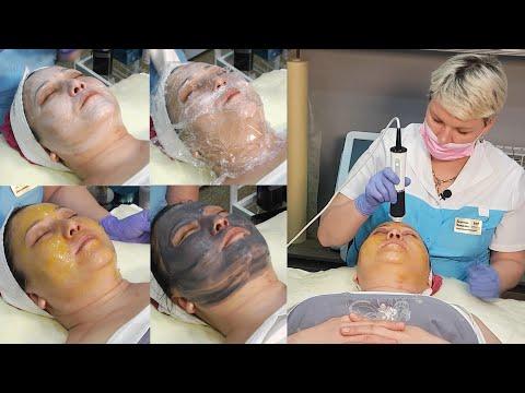 Комбинированная чистка лица.  Как правильно ее делать. photo