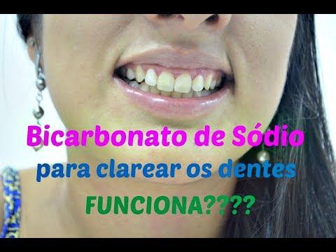 31 Clarear Dentes C Bicarbonato E Agua Oxigenada Tomclip