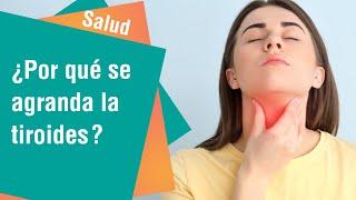 ¿Por qué se agranda la tiroides | Salud