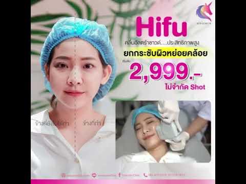 HIFU-ยกกระชับหย่อนคล้อย-ที่ยูน