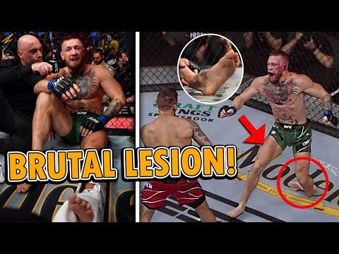 CONOR MCGREGOR SUFRE BRUTAL LESIÓN CONTRA DUSTIN POIRIER EN UFC 264   CONOR MCGREGOR SE ROMPE EL PIE