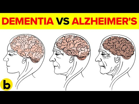 Dementia Vs Alzheimer's: How to Tell the Difference