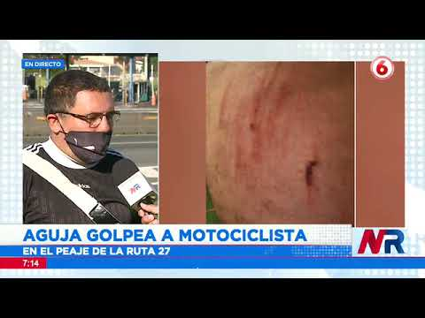 Aguja golpea a motociclista y le provoca serias lesiones