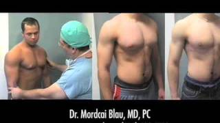 On Gynecomastia Patients From The Midwest Michigan Ohio