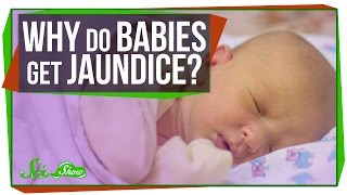 Why Do Newborn Babies Get Jaundice?