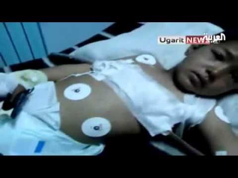 طفل سوري يروي قصة تعذيبه