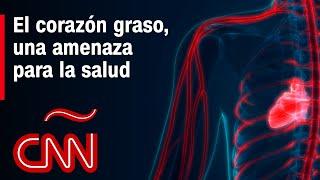 El corazón graso, una amenaza para la salud: te explicamos por qué