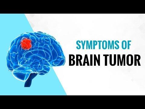 जाने ब्रेन ट्यूमर के क्या लक्षण हैं? - Onlymyhealth.com