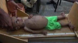 Hunger stalks Yemeni children as UN cuts programs