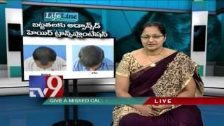 Baldness : Advanced Hair Transplantation - Lifeline