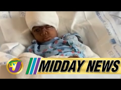 Survivor of Vicious Dog Attack Recovering Well | TVJ Midday News - June 14 2021