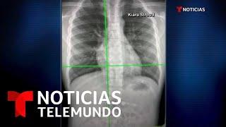 Se tragó su regalo navideño y terminó en el hospital   Noticias Telemundo