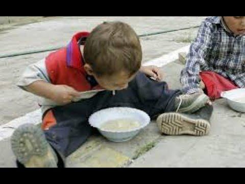 Guatemala no debería tener inseguridad alimentaria
