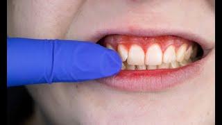 ¿Qué es la periodontitis