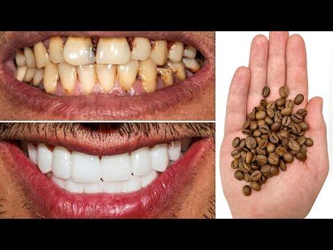 Отбеливание ЗУБОВ за 2 минуты в Домашних условиях! Как отбелить желтые зубы photo