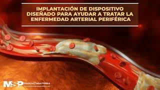 Implantación de dispositivo diseñado para ayudar a tratar la enfermedad arterial periférica
