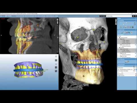 Planmeca Romexis CMF Surgery