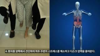 자생한방병원 급성 허리디스크 자생 비수술치료법 동작침법 - 급성 통증감소 효과 입증(국제학술지 PAIN 게재)