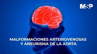 Malformaciones arteriovenosas y aneurisma de la aorta