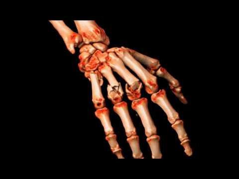 Metacarpals Fractured Hand