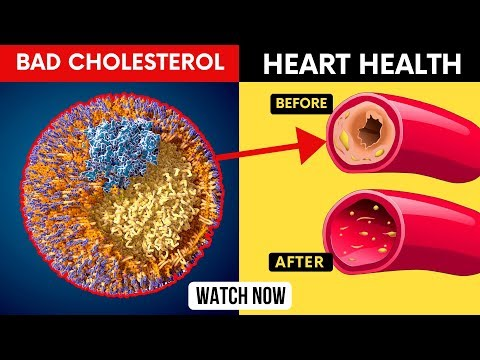 Take These Drinks to Lower Bad Cholesterol, Unclog Arteries and Reduce Stroke Naturally