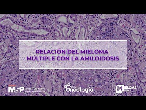 Relación del mieloma múltiple con la amiloidosis