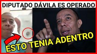 URGENTE OPERAN AL DIPUTADO ALDO DAVILA EN EL HOSPITAL SAN JUAN DE DIOS POR CALCULOS EN LA VESICULA