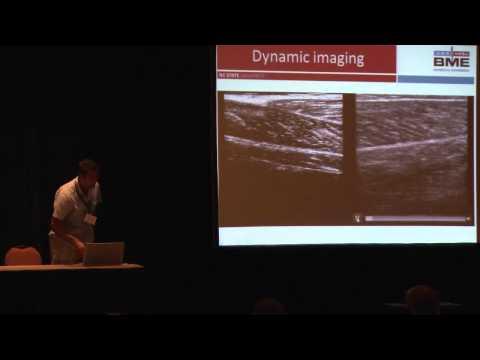 B-Mode Ultrasound Imaging for Studying Human Muscle Mechanics