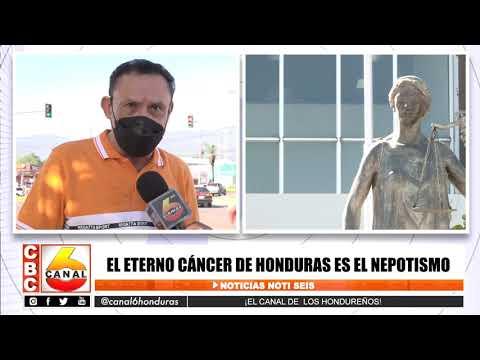 El eterno cáncer de Honduras es el nepotismo