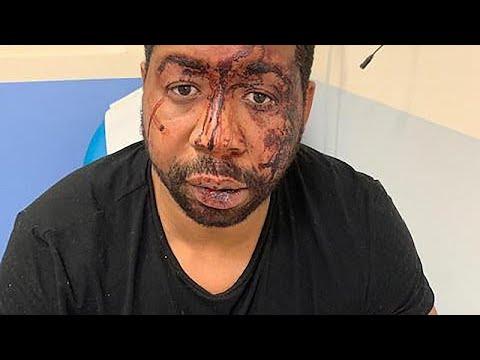 Francia: cuatro detenidos por un caso de violencia policial con tintes racistas