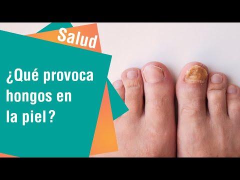 Hongos en uñas y piel debido a humedad y sol | Salud