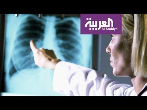 صباح العربية: السيجارة الالكترونية لا تسبب تجمع الماء في الرئة
