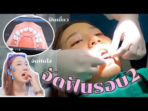 จัดฟันรอบ2-แบบใส!!-แก้ไขฟันหน้