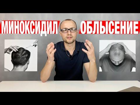 Облысение у мужчин. Лечение / Миноксидил для бороды и волос / Выпадают волосы что делать photo