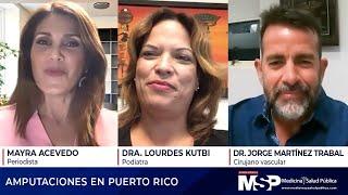 Amputaciones en Puerto Rico
