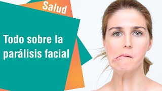 Parálisis facial: Factores de riesgo, síntomas y tratamiento | Salud