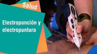 Electropunción y electropuntura para curar males físicos | Salud
