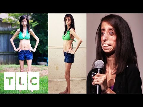 The World's Thinnest Woman | Body Bizarre