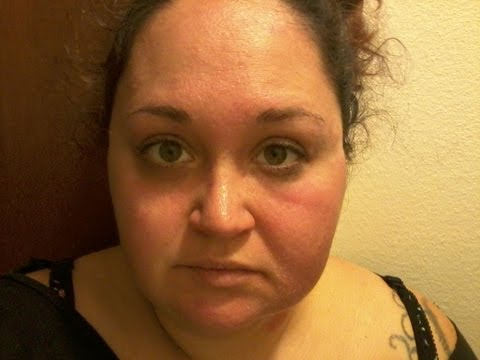 Makeup allergic reaction