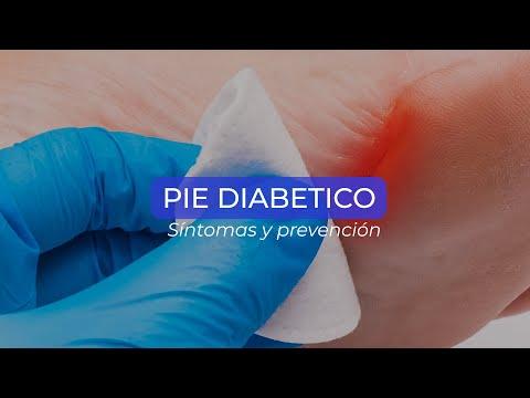 Pie diabético síntomas y prevención