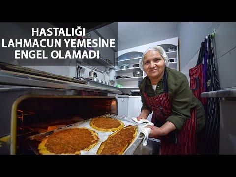 Çölyak Hastası Pastane Sahibi, Glutensiz Lahmacun Yaptı