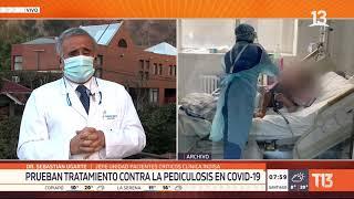 Prueban en Chile tratamiento contra la pediculosis para pacientes COVID-19