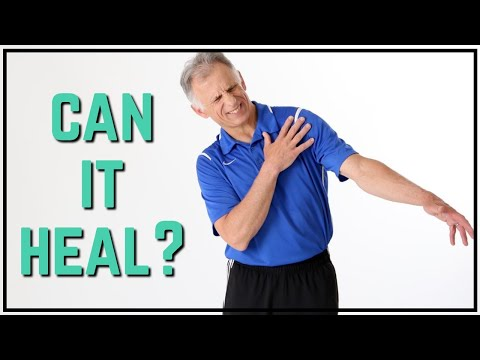Can I Heal My Torn Rotator Cuff, Science Shows Positive Results Without Surgery, MUST See!