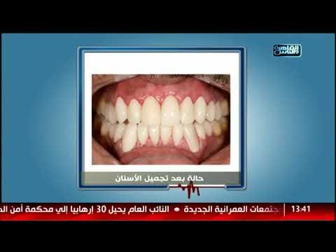 الدكتور | فنيات زراعة الأسنان وتجميلها مع دكتور شادى على حسين