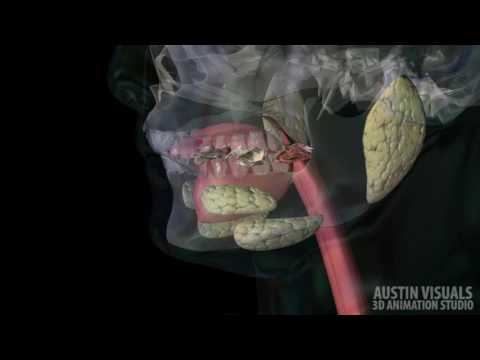 Gastric Bypass Austin Visuals 3D Animation Studio